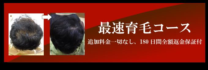 神戸市深夜26時まで営業ヘアサロン(美容院・美容室)リアンブリエのアメリオール最速育毛コース